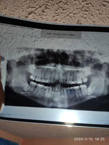 cirugía de tercer molar