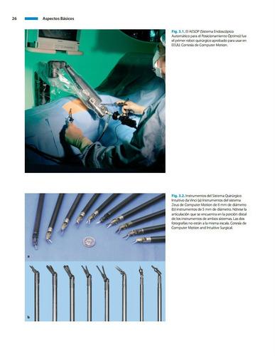cirugía endoscópica en infantes y niños 2 tomos