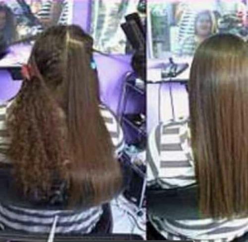 cirugía plástica capilar haired beauty