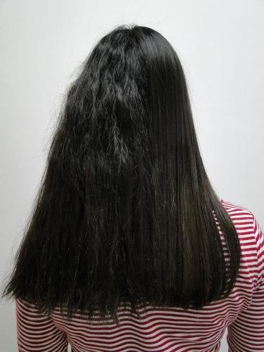 cirugia plastica capilar lirika 2 oz cabellos
