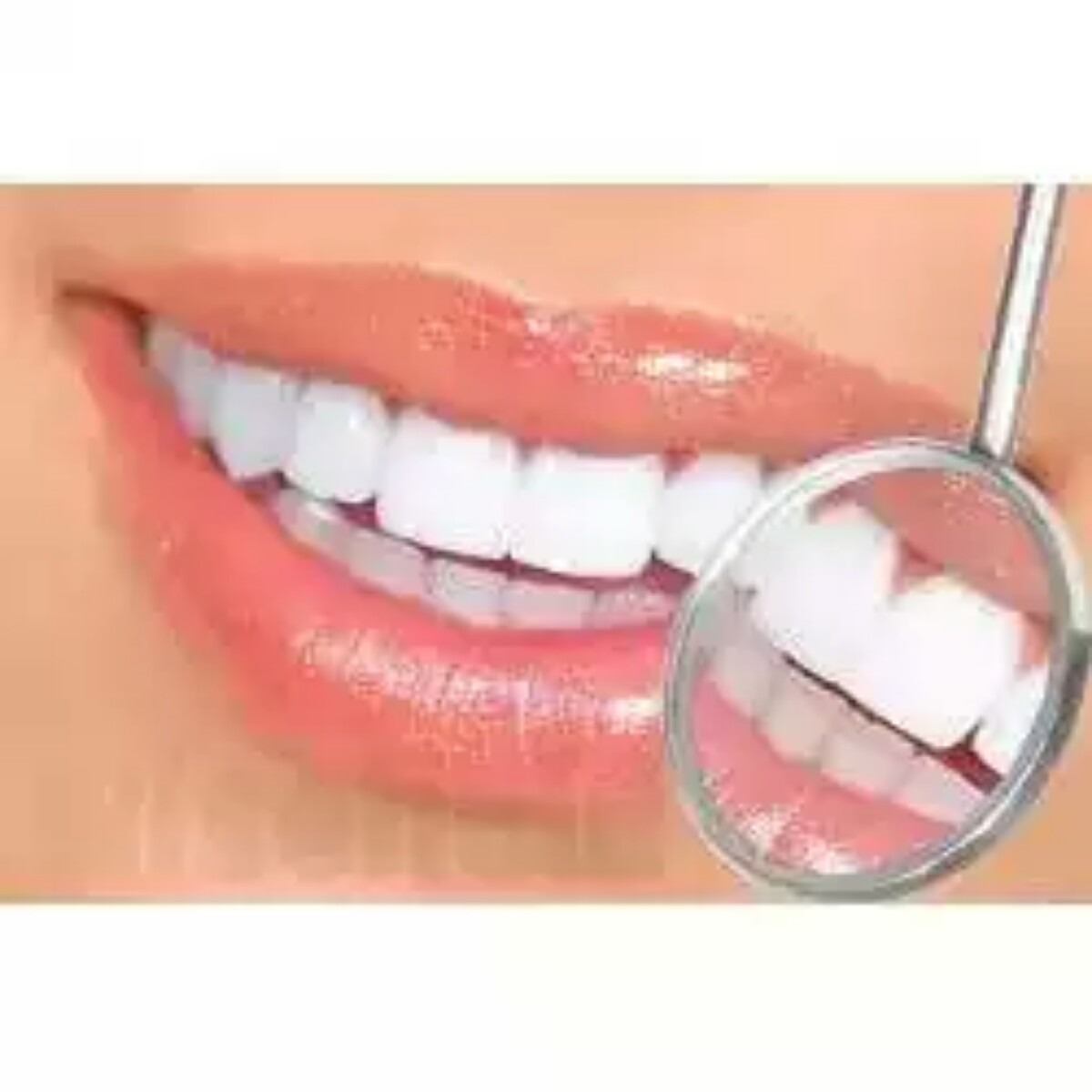 Clareador De Dentes Brancos Caneta Clarear Branqueadora Pen R 24