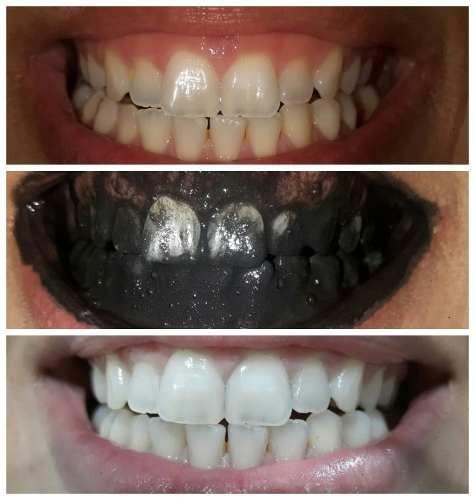 Clareador Dental Carvvo Kit 2 Potes 100 Original O Melhor R 67