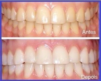 Clareador Dental Caseiro 22 Avulso Fgm R 29 90 Em Mercado Livre