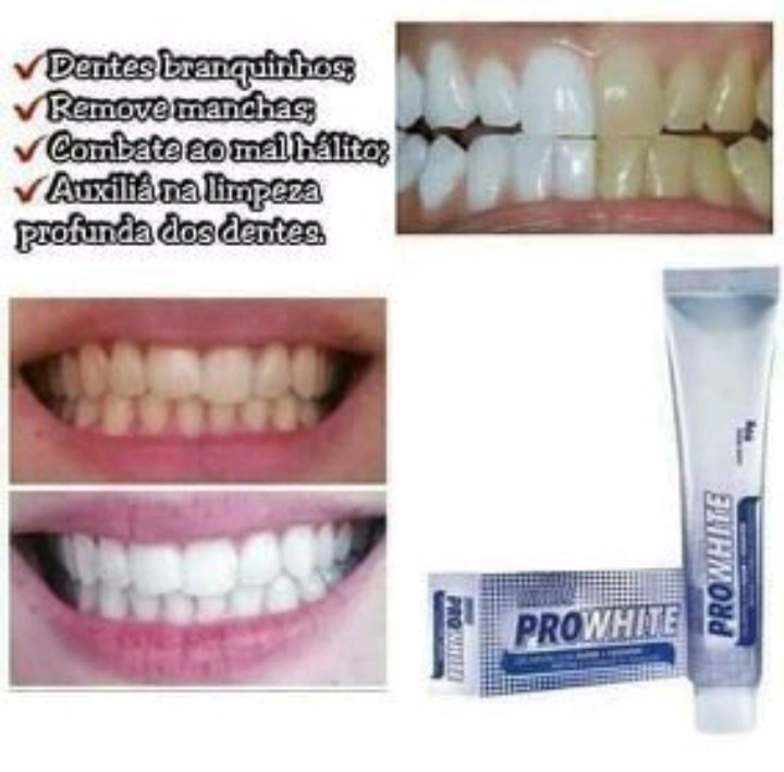 Clareador Dental Gel Dental Hinode Pro White 90g R 10 00 Em