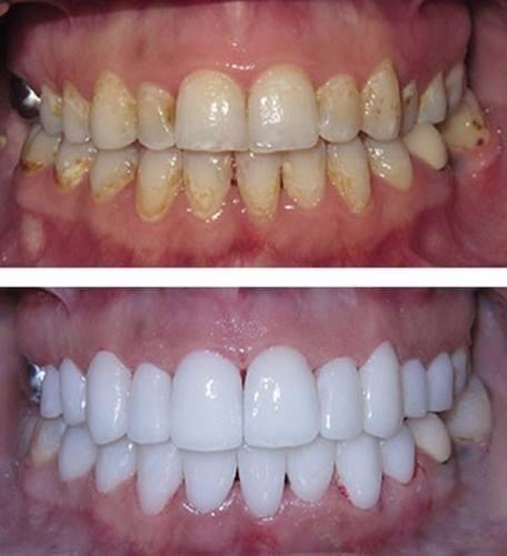 Clareador Dental Gel White Light Branco Pronta Entrega R 15 00
