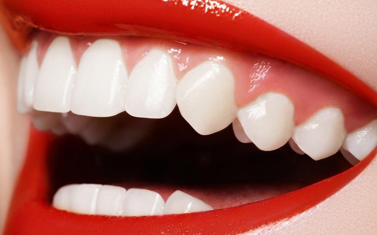 Clareador Dental Lindos Dentes Placas Kit 5 Pecas Promocao R 115
