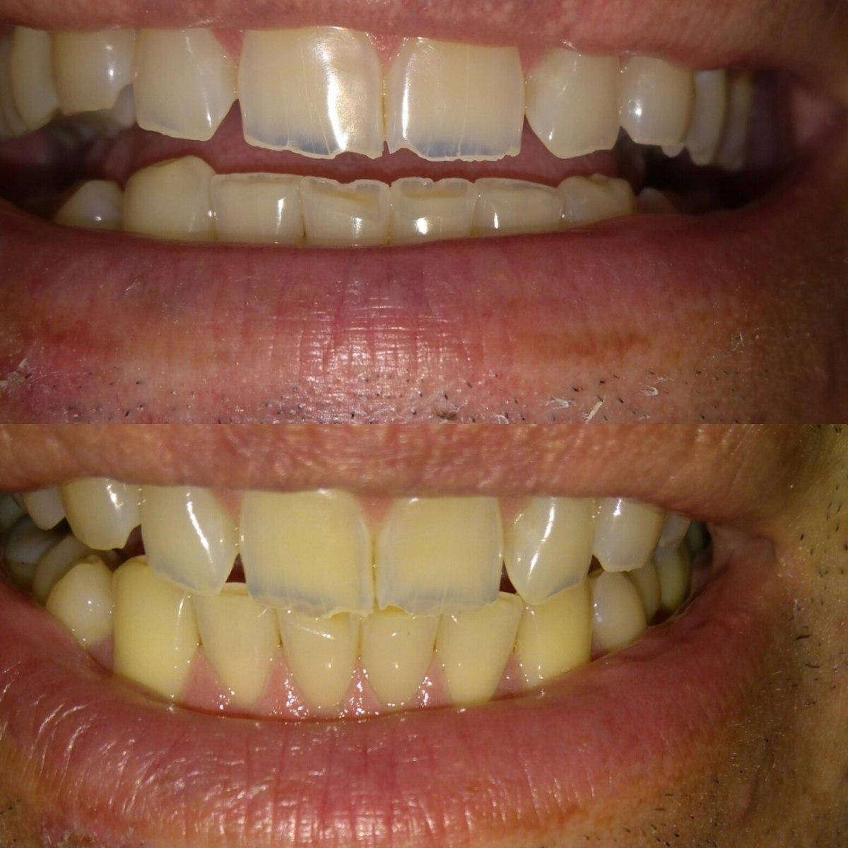 Clareador Dental Pasta De Dente Preta R 29 00 Em Mercado Livre