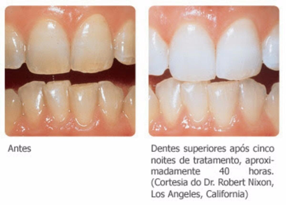 Clareador Dental Seringa Dentes Brancos Em Poucos Dias 3ml R 19