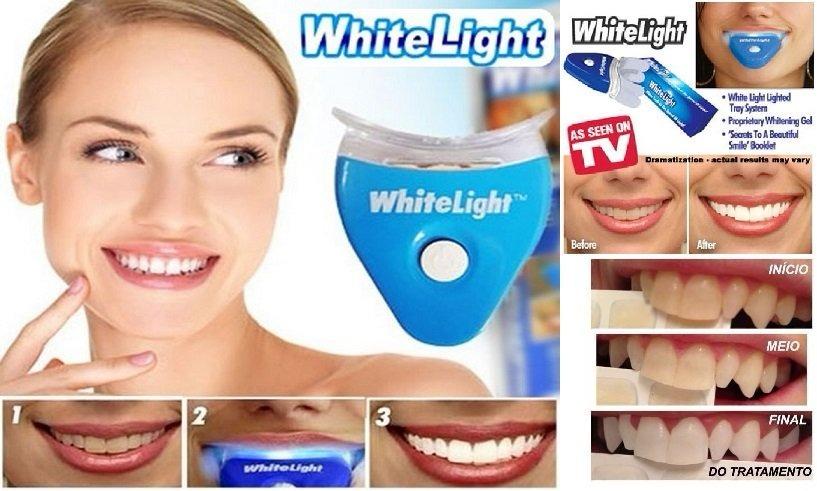 Clareador Dental Whitelight Clareamento Dentario Fgratis R 62 90