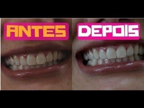 Clareador Dental Whitemax 3 Potes Melhor Preco Withemax R 109