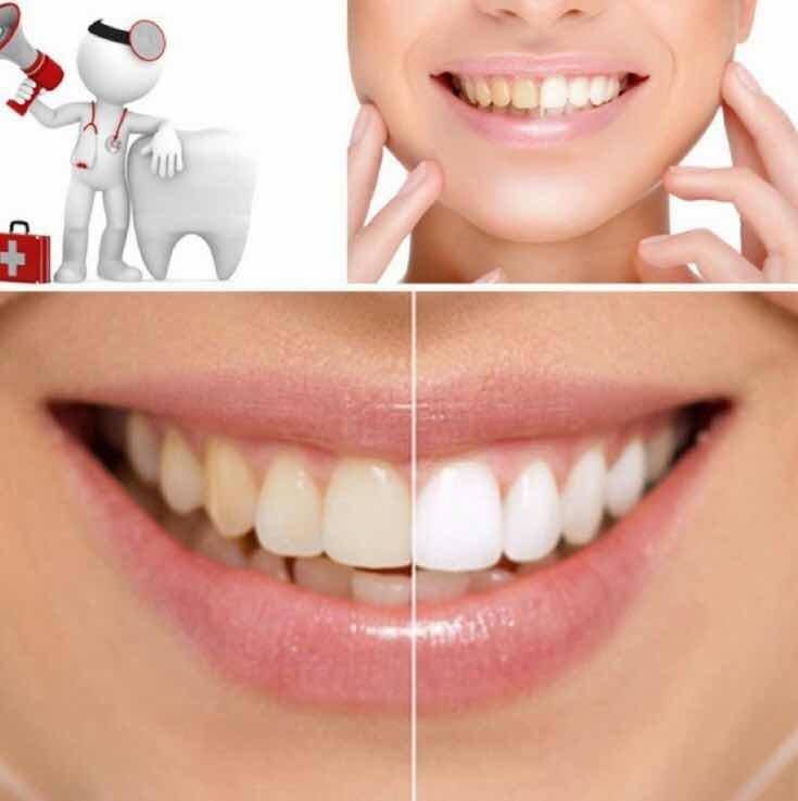 Clareador Dentes Carvao Ativado Natural Branqueador Dental R 25