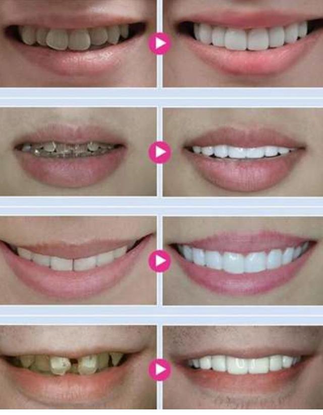 Clareamento Caseiro Gel Teeth Whitening 44 Peroxido Dental R 129