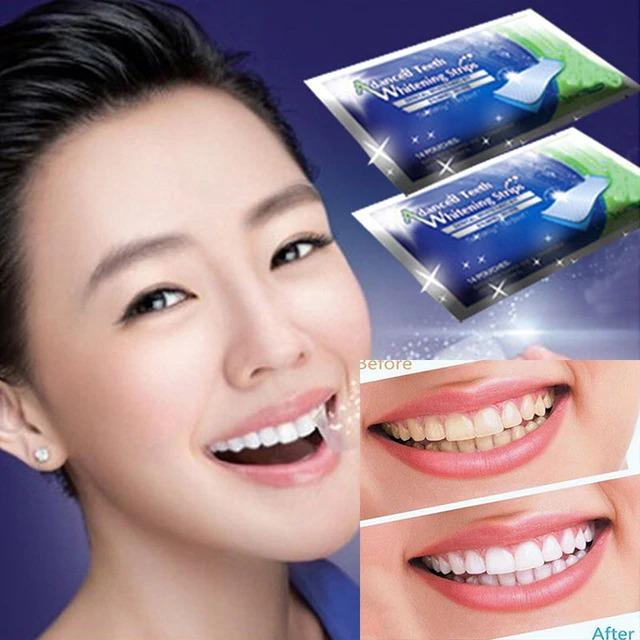 Clareamento Dental 3d Whitning R 59 90 Em Mercado Livre