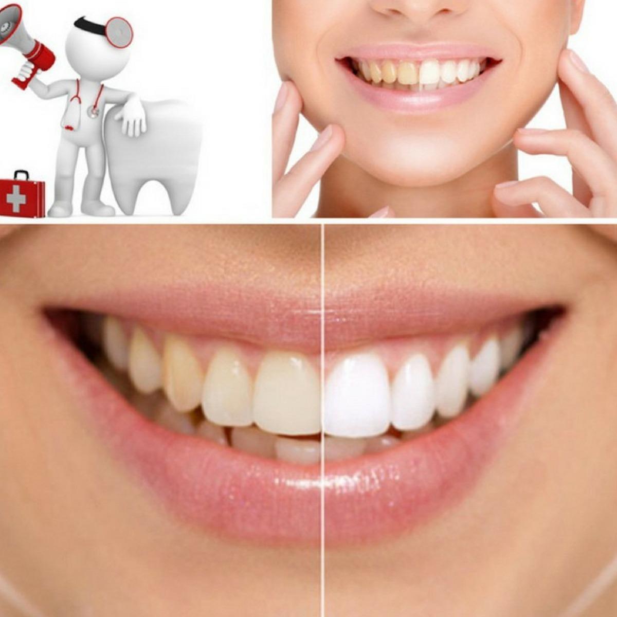 Clareamento Dental Carvao Em Po Ativado Profissional Natural R 29