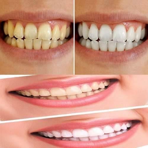Clareamento Dental Caseiro Led Moldeira Porta Moldeira R