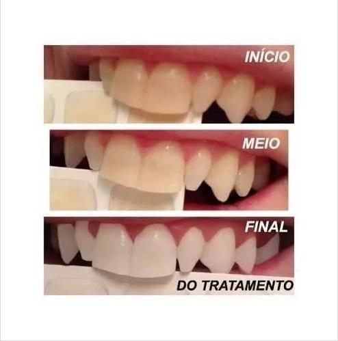 Clareamento Dental Caseiro Whiteness Gel 22 Kit Casal 10s R 149