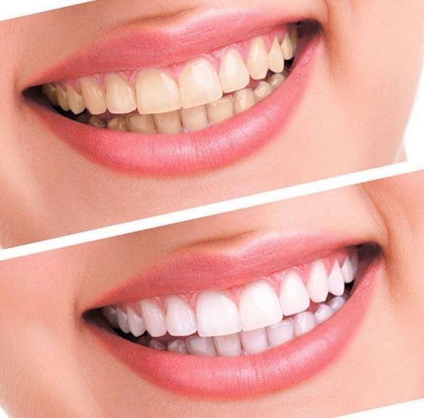 Clareamento Dental Clareador 10 Gel 4 Moldeiras 1 Luz Dentes R 79