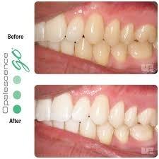 Clareamento Dental Opalescence Com Moldeira Kit Com 10 R 220