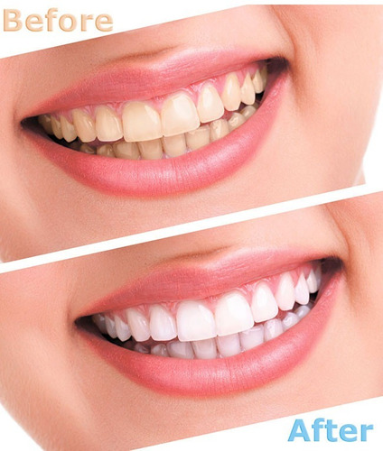 clareamento dental whiteness 44% 10 seringas pronta entrega