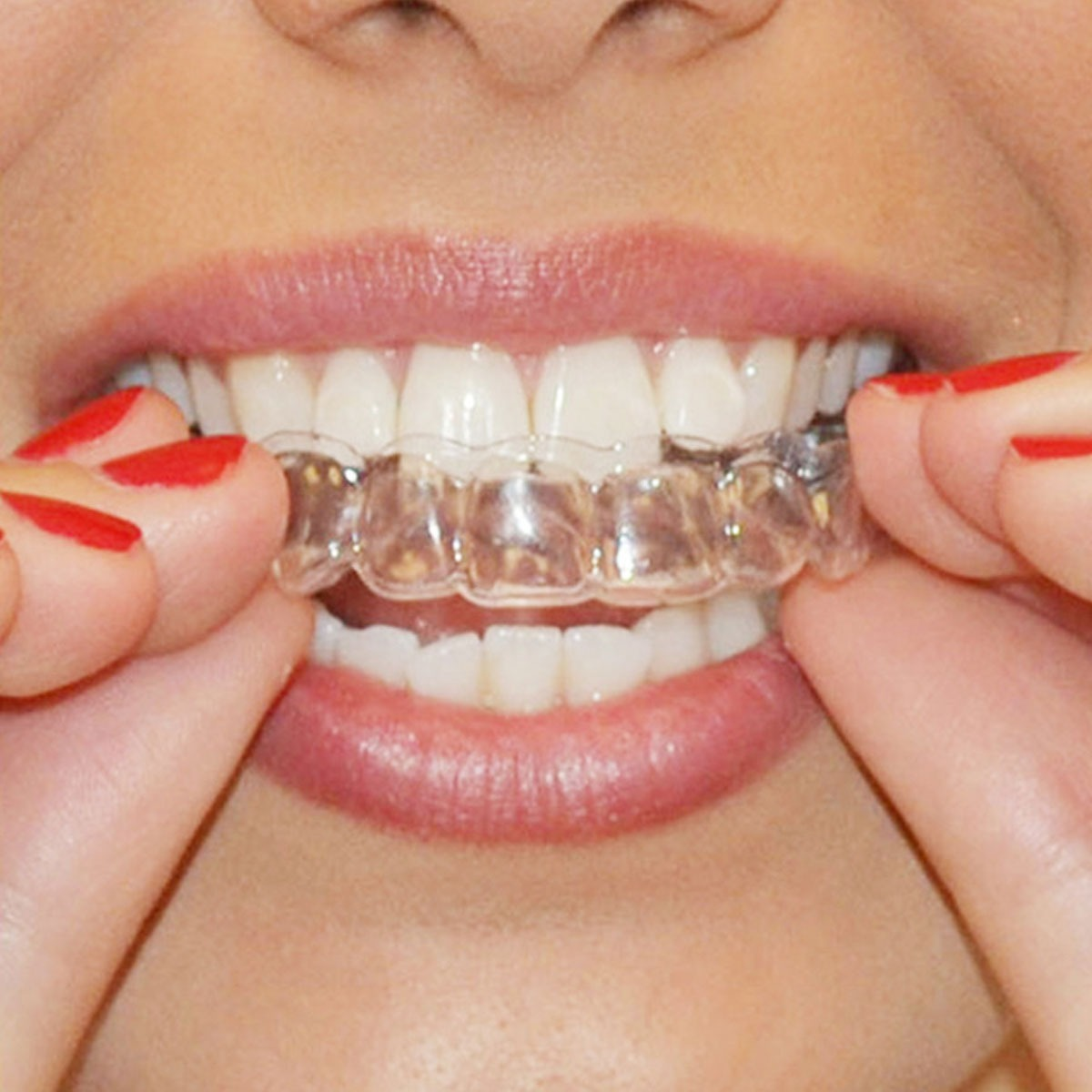 Clareamento Dental Whiteness Luz Caseiro Moldeira 10 Seringa R 55