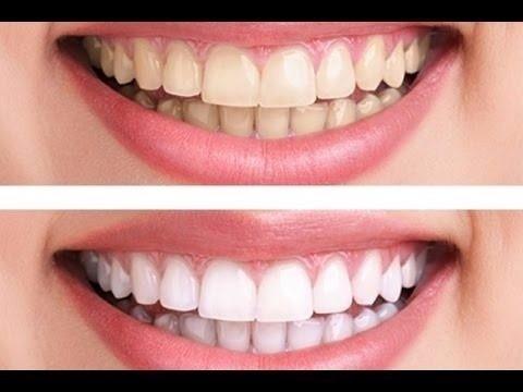 Clareamento Dental Whiteness Perfect 16 Ou 22 Moldeira R 119