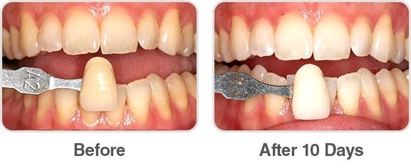 Clareamento Dental Whiteness Perfect 22 Kit Completo R 199 00
