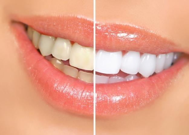 Clareamento Dental Whiteness Simple 16 C 3 Unidades R 120 00 Em