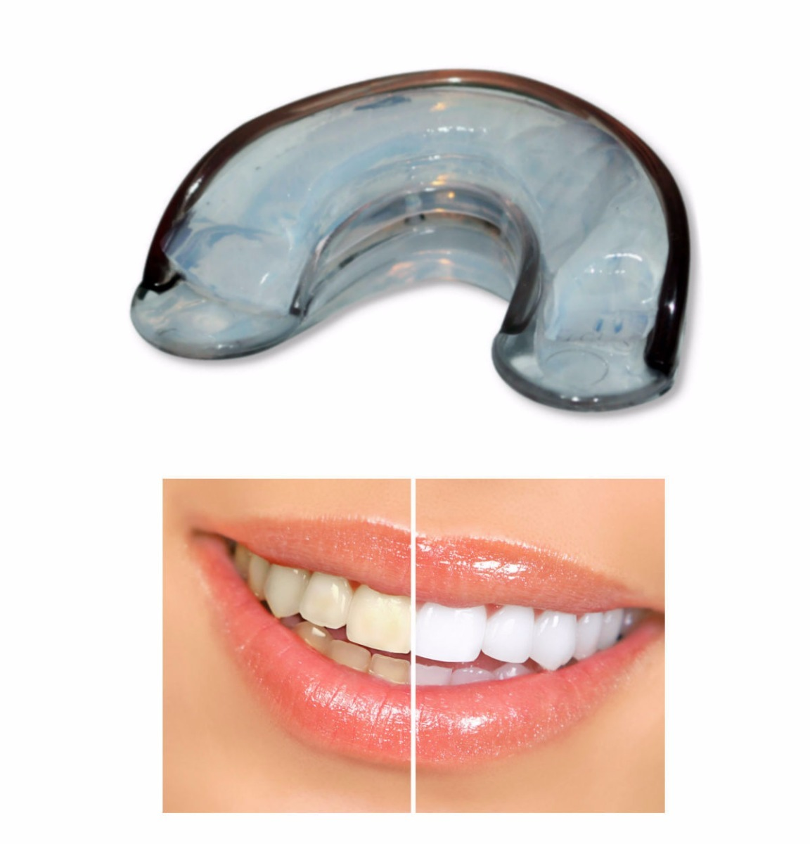 Clareamento Dental Whiteness Simple 22 6 Gel Molde Silicone R