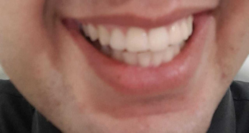 clariador dental