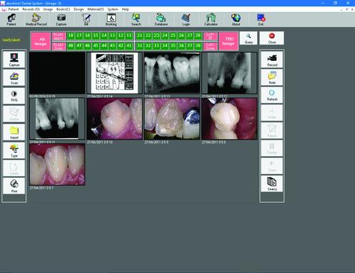 câmera intra oral sky itx completa