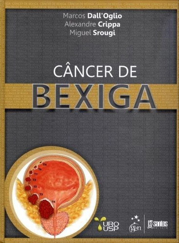 câncer de bexiga