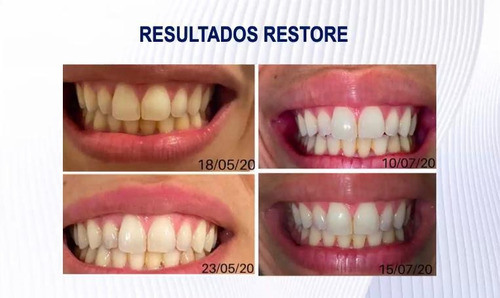 colagenos naara y  restore gel dental