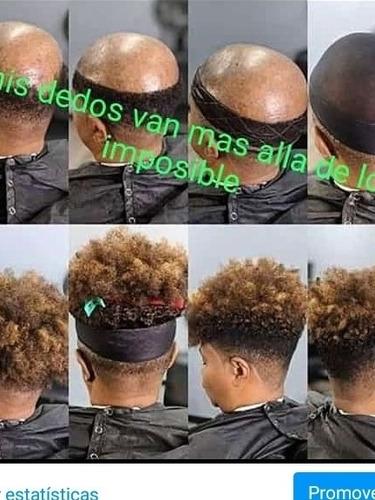 colocacion d protesis capilar indetetables gente cn alopecia
