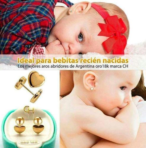 colocación de aros abridores bebés/nenas-enfermera neonatal