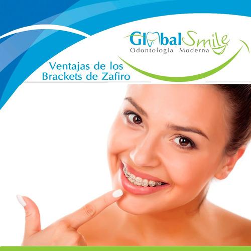 colocación de implante dental  de titanio 390