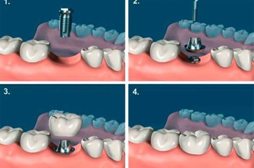 colocacion de implantes dentales, nacional o importado.