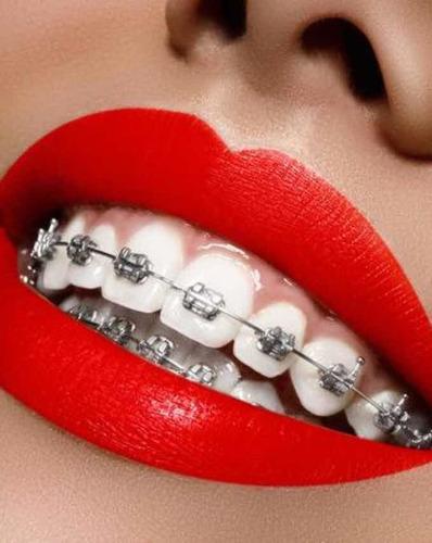 colocacion de ortodoncia en ambos maxilares