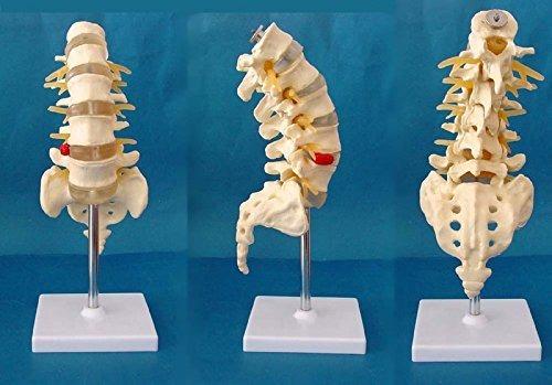 Columna Vertebral De La Espina Dorsal Humana Médico Modelo D ...