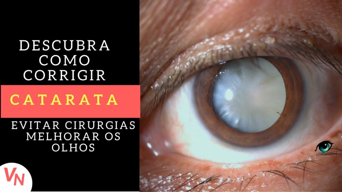 Como Corrigir Catarata - R  129,90 em Mercado Livre 1e0ba610ef