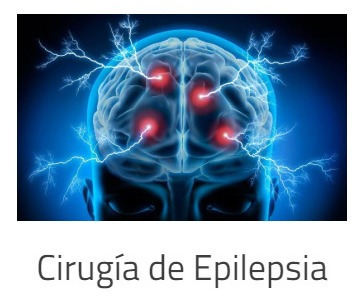 consulta medica neurocirugía