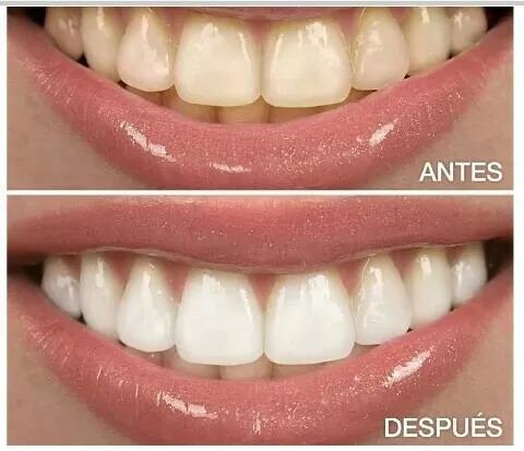 consulta odontológica de urgencia. turnos.