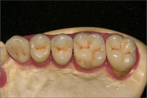 consulta odontológica para tratamientos dentales