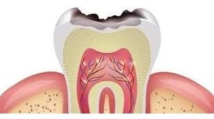 consulta odontológica (uba). urgencias/ trat. de conductos