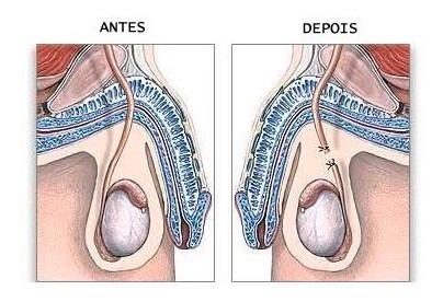 consultoria de viabilização para a sua vasectomia e ligadura