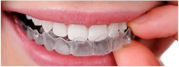 consultorio odontologico. dentista. limpieza de sarro $500