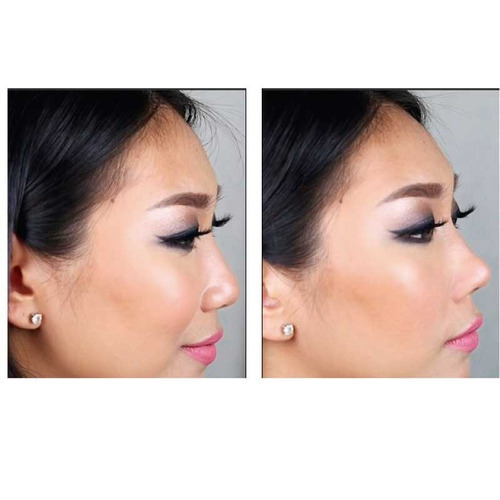 corrector de nariz sin ciruga- nose up