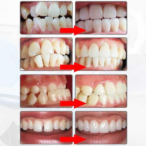 corrector dental ferula alinea dientes ortodoncia protector