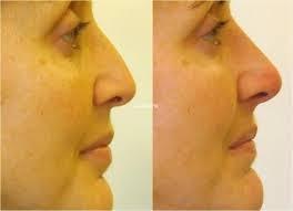 corrector nasal nariz bella 30 segundos sin cirugía rulav