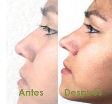 corrector nasal nariz bella 30seg sin cirugia protesis rulav