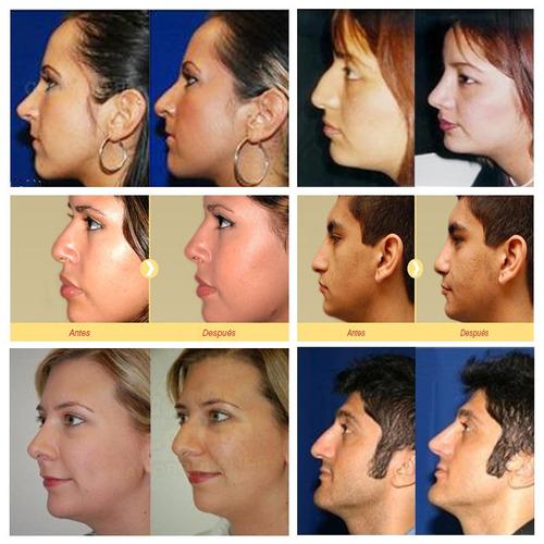 corrector nasal nariz perfecta en 10 segundos resultados inm